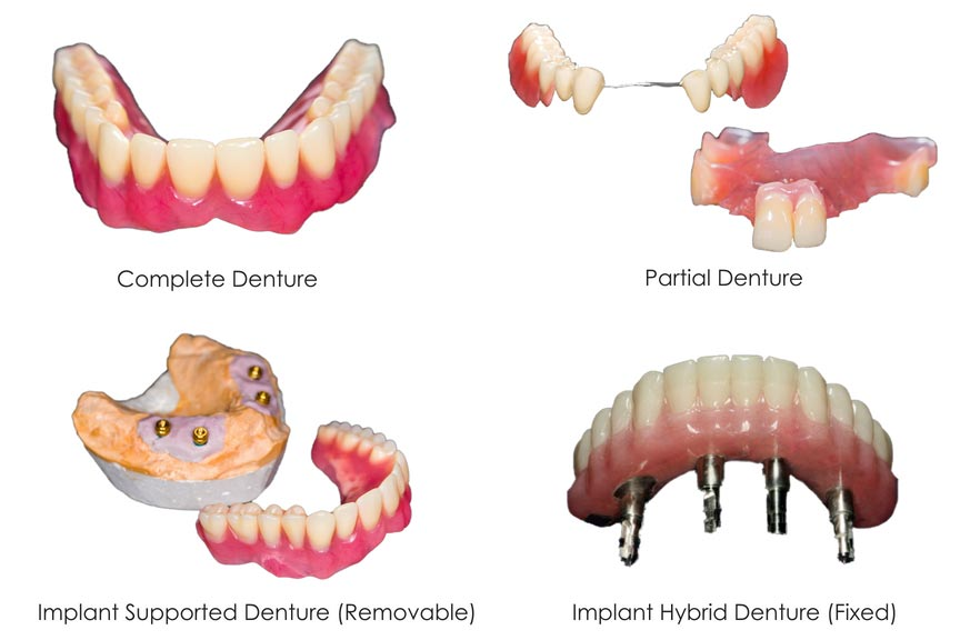 Types-of-Dentures